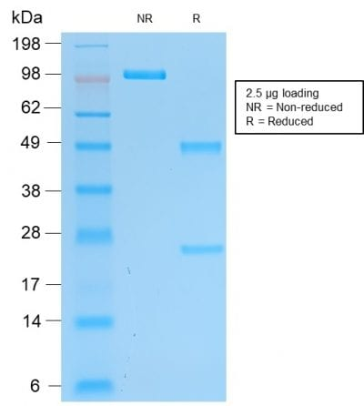 SDS-PAGE Analysis Purified Pgp9.5 Mouse Recombinant Monoclonal Antibody (rUCHL1/775). Confirmation of Purity and Integrity of Antibody.