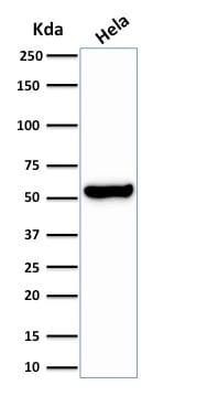 Western Blot Analysis of Hela Cell lysate using HSP60 Rabbit Recombinant Monoclonal Antibody (HSPD1/2206R).