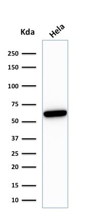 Western Blot Analysis of HeLa Cell lysate using HSP60 Mouse Recombinant Monoclonal Antibody (rGROEL/780).