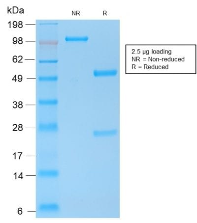 SDS-PAGE Analysis of Purified E-Cadherin Rabbit Recombinant Monoclonal Antibody (CDH1/2208R). Confirmation of Purity and Integrity of Antibody.