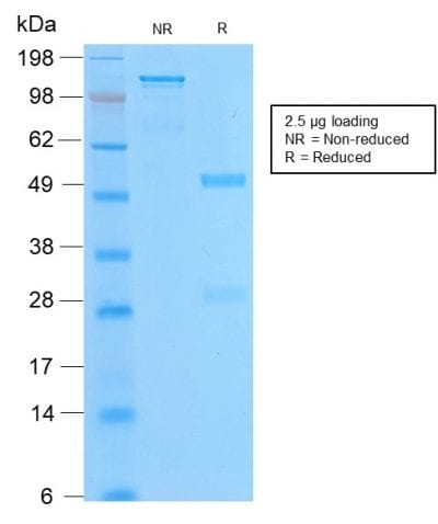 SDS-PAGE Analysis of Purified Bcl-2 Rabbit Recombinant Monoclonal Antibody (BCL2/2210R). Confirmation of Purity and Integrity of Antibody.