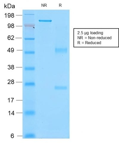 SDS-PAGE Analysis Purified CD43 Mouse Recombinant Monoclonal Antibody (rSPN/839). Confirmation of Purity and Integrity of Antibody.