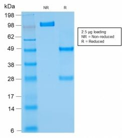 SDS-PAGE Analysis Purified Bcl-2 Mouse Recombinant Monoclonal Antibody (rBCL2/782). Confirmation of Purity and Integrity of Antibody.