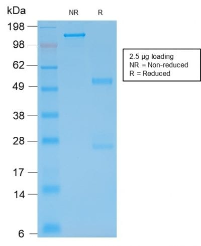 SDS-PAGE Analysis Purified GFAP Mouse Recombinant Monoclonal Antibody (rASTRO/789). Confirmation of Purity and Integrity of Antibody.