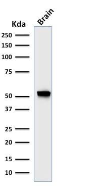 Western Blot Analysis of Human Brain tissue lysate using GFAP Mouse Recombinant Monoclonal Antibody (rASTRO/789).