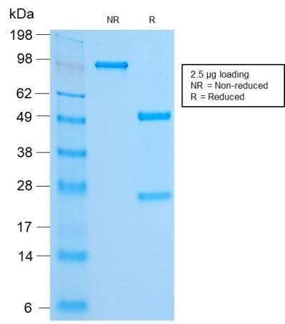 SDS-PAGE Analysis Purified FOXA1 Rabbit Recombinant Monoclonal Antibody (FOXA1/2230R). Confirmation of Purity and Integrity of Antibody.