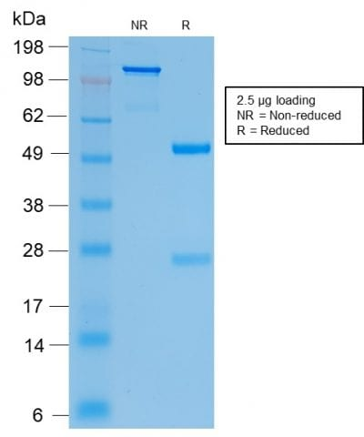 SDS-PAGE Analysis Purified CFTR Rabbit Recombinant Monoclonal Antibody (CFTR/2290R). Confirmation of Purity and Integrity of Antibody.
