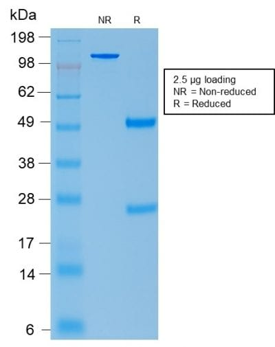 SDS-PAGE Analysis Purified ACTH Mouse Recombinant Monoclonal Antibody (rCLIP/1407). Confirmation of Purity and Integrity of Antibody.
