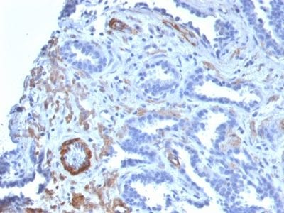 Formalin-fixed paraffin-embedded human Prostate Carcinoma stained with SM-MHC Recombinant Rabbit Monoclonal Antibody (MYH11/2303R).