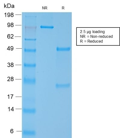 SDS-PAGE Analysis Purified SM-MHC Recombinant Rabbit Monoclonal Antibody (MYH11/2303R). Confirmation of Purity and Integrity of the Antibody.