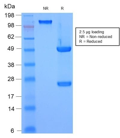 SDS-PAGE Analysis Purified HSP27 Mouse Recombinant Monoclonal Antibody (rHSPB1/774). Confirmation of Purity and Integrity of Antibody.
