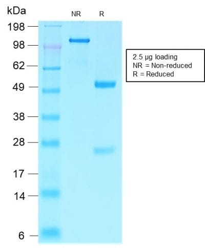 SDS-PAGE Analysis Purified Villin Rabbit Recombinant Monoclonal Antibody (VIL1/2310R). Confirmation of Purity and Integrity of the Antibody.