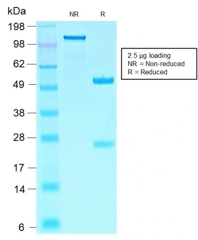 SDS-PAGE Analysis PurifiedSOX10 Rabbit Recombinant Monoclonal Antibody(SOX10/2311R). Confirmation of Purity and Integrity of Antibody.