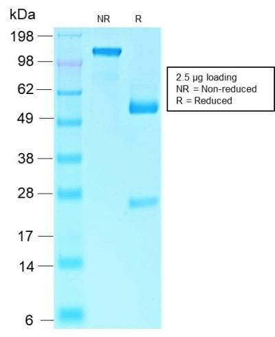 SDS-PAGE Analysis Purified Retinoblastoma Recombinant Rabbit Monoclonal Antibody (RB1/2313R). Confirmation of Purity and Integrity of Antibody.