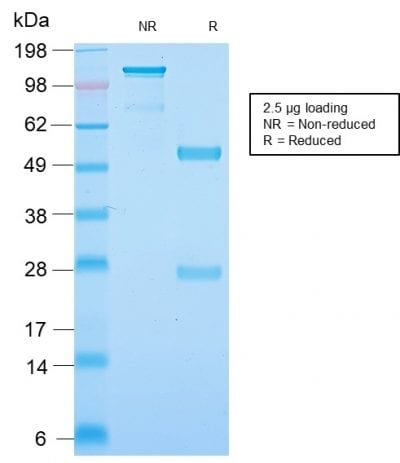 SDS-PAGE Analysis of Purified Neurofilament Rabbit Recombinant Monoclonal Antibody (NEFL.H/2324R). Confirmation of Purity and Integrity of Antibody.