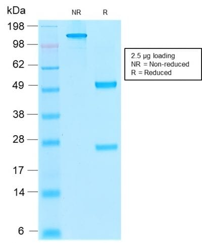 SDS-PAGE Analysis Purified Thrombomodulin Mouse Recombinant MAb (rTHBD/1591). Confirmation of Purity and Integrity of Antibody.