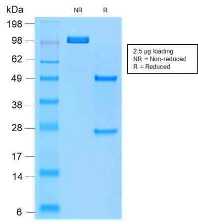 SDS-PAGE Analysis of Purified TRAcP Mouse Recombinant Monoclonal Antibody (rACP5/1070). Confirmation of Purity and Integrity of Antibody.