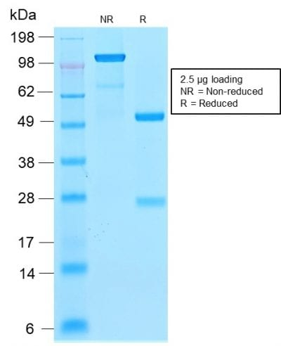 SDS-PAGE Analysis Purified Ferritin LC Rabbit Recombinant Monoclonal Antibody (FTL/2338R). Confirmation of Purity and Integrity of Antibody.