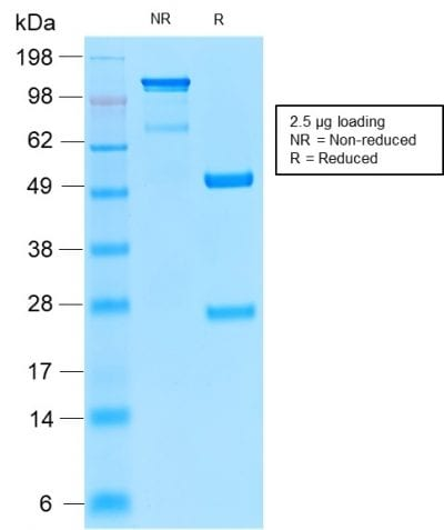 SDS-PAGE Analysis of Purified TYRP1 Recombinant Rabbit Monoclonal Antibody (TYRP1/2340R). Confirmation of Purity and Integrity of Antibody.