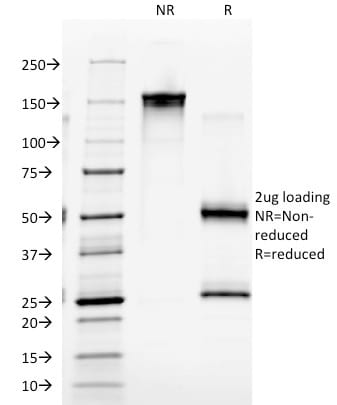 SDS-PAGE Analysis Purified EGFR Mouse Monoclonal Antibody (GFR/2341).Confirmation of Purity and Integrity of Antibody.