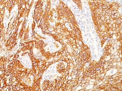 Formalin-fixed paraffin-embedded human Lung SqCC stained with EGFR Mouse Monoclonal Antibody (GFR/2341).