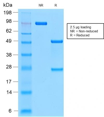 SDS-PAGE Analysis Purified CD44v9 Rabbit Recombinant Monoclonal Antibody (CD44v9/2344R). Confirmation of Purity and Integrity of Antibody.