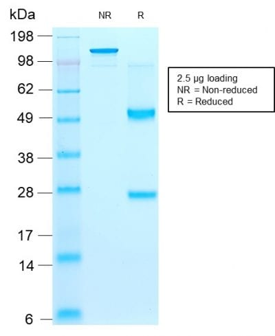 Purified CD44v9 Mouse Recombinant Monoclonal Antibody (rCD44v9/1459). Confirmation of Purity and Integrity of Antibody.