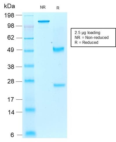 SDS-PAGE Analysis Purified AIF1 / Iba1 Mouse Recombinant Monoclonal Antibody (rAIF1/1909). Confirmation of Purity and Integrity of Antibody.