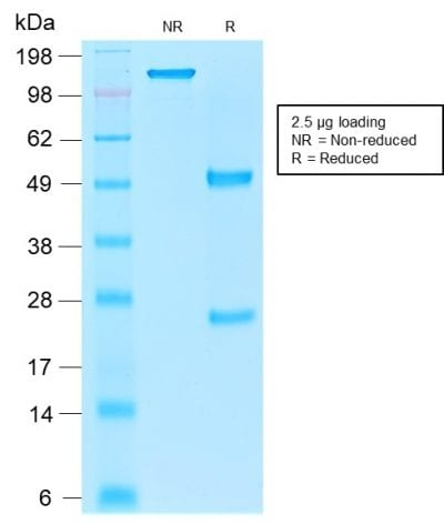 SDS-PAGE Analysis Purified EpCAM Mouse Recombinant Monoclonal Antibody (rEGP40/1110). Confirmation of Purity and Integrity of Antibody.