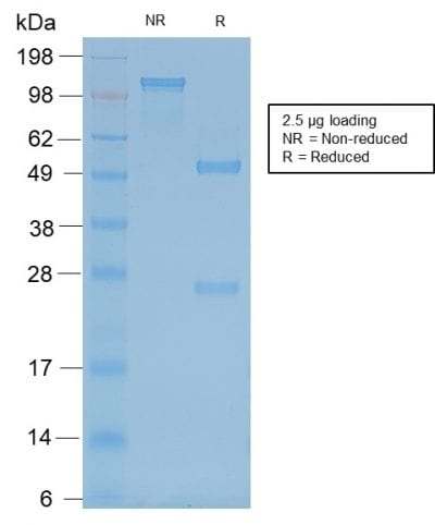 SDS-PAGE Analysis Purified Neurofilament Mouse Recombinant Monoclonal Antibody (rNF421). Confirmation of Purity and Integrity of Antibody.