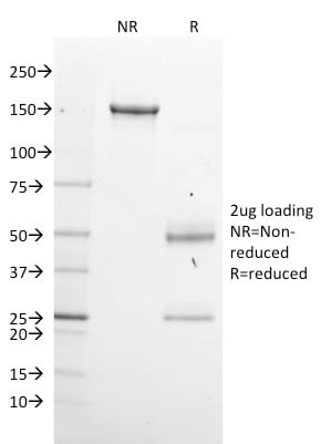 SDS-PAGE Analysis Purified GPN1 Mouse Monoclonal Antibody (GPN1/2350).Confirmation of Purity and Integrity of Antibody.