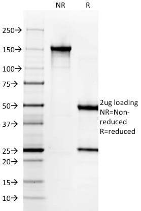 SDS-PAGE Analysis Purified Cytokeratin 6A (KRT6A) Mouse Monoclonal Antibody (KRT6A/2368). Confirmation of Purity and Integrity of Antibody.