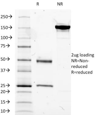 SDS-PAGE Analysis Purified CD14 Mouse Monoclonal Antibody (LPSR/2385). Confirmation of Purity and Integrity of Antibody.