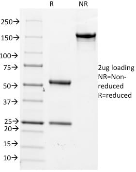 SDS-PAGE Analysis Purified CD14 Mouse Monoclonal Antibody (LPSR/2386).Confirmation of Purity and Integrity of Antibody.