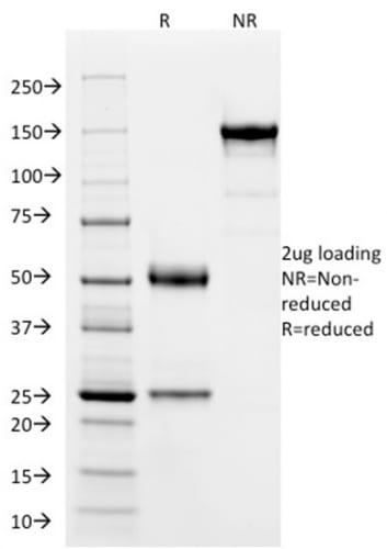 SDS-PAGE Analysis Purified SOX9 Mouse Monoclonal Antibody (SOX9/2387). Confirmation of Purity and Integrity of Antibody.
