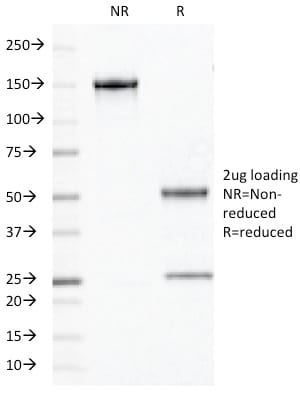 SDS-PAGE Analysis Purified OLIG2 Mouse Monoclonal Antibody (OLIG2/2400). Confirmation of Purity and Integrity of Antibody.