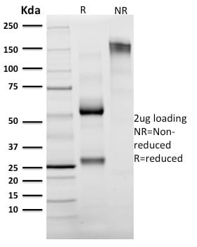 SDS-PAGE Analysis Purified Granzyme B Mouse Monoclonal Antibody (GZMB/2403).Confirmation of Purity and Integrity of Antibody.