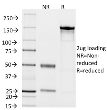 SDS-PAGE Analysis Purified CD14 Mouse Monoclonal Antibody (LPSR/2408).Confirmation of Purity and Integrity of Antibody.