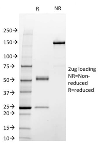SDS-PAGE Analysis Purified STAT3 Mouse Monoclonal Antibody (STAT3/2409).Confirmation of Purity and Integrity of Antibody.