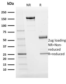 SDS-PAGE Analysis Purified BOB1 Mouse Monoclonal Antibody (BOB1/2424).Confirmation of purity and integrity.