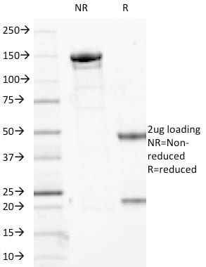 SDS-PAGE Analysis Purified p63 Mouse Monoclonal Antibody (TP63/2427).Confirmation of Purity and Integrity of Antibody.