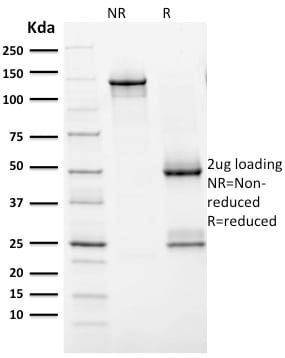 Analysis of Protein Array containing more than 19000 full-length human proteins using HER-2 Mouse Monoclonal Antibody (ERBB2/2452). Z- and S- Score: The Z-score represents the strength of a signal that a monoclonal antibody (MAb) (in combination with a fluorescently-tagged anti-IgG secondary antibody) produces when binding to a particular protein on the HuProtTM array. Z-scores are described in units of standard deviations (SD's) above the mean value of all signals generated on that array. If targets on HuProtTM are arranged in descending order of the Z-score the S-score is the difference (also in units of SD's) between the Z-score. S-score therefore represents the relative target specificity of a MAb to its intended target.  A MAb is considered to specific to its intended target if the MAb has an S-score of at least 2.5. For example if a MAb binds to protein X with a Z-score of 43 and to protein Y with a Z-score of 14 then the S-score for the binding of that MAb to protein X is equal to 29.