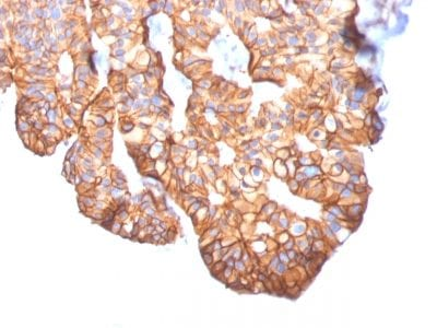 Formalin-fixed paraffin-embedded Human Breast Carcinoma stained with HER-2 Mouse Monoclonal Antibody (ERBB2/2452).
