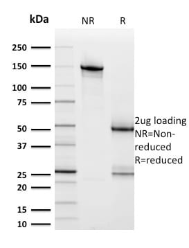 SDS-PAGE Analysis HER-2 Mouse Monoclonal Antibody (ERBB2/2453).Confirmation of Purity and Integrity of Antibody.