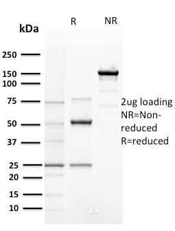 Analysis of Protein Array containing more than 19000 full-length human proteins using Cyclin E Mouse Monoclonal Antibody (CCNE1/2460). Z- and S- Score: The Z-score represents the strength of a signal that a monoclonal antibody (MAb) (in combination with a fluorescently-tagged anti-IgG secondary antibody) produces when binding to a particular protein on the HuProtTM array. Z-scores are described in units of standard deviations (SD's) above the mean value of all signals generated on that array. If targets on HuProtTM are arranged in descending order of the Z-score the S-score is the difference (also in units of SD's) between the Z-score. S-score therefore represents the relative target specificity of a MAb to its intended target.  A MAb is considered to specific to its intended target if the MAb has an S-score of at least 2.5. For example if a MAb binds to protein X with a Z-score of 43 and to protein Y with a Z-score of 14 then the S-score for the binding of that MAb to protein X is equal to 29.