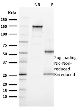 SDS-PAGE Analysis Purified Ki67 Mouse Monoclonal Antibody (MKI67/2462).Confirmation of Integrity and Purity of Antibody
