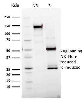 SDS-PAGE Analysis Purified Ki67 Mouse Monoclonal Antibody (MKI67/2465).Confirmation of Purity and Integrity of Antibody.