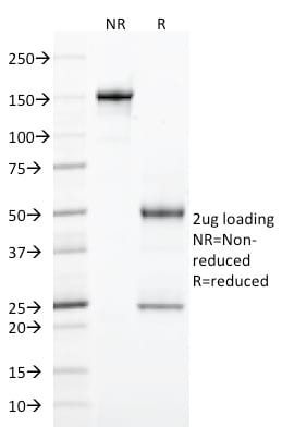 SDS-PAGE Analysis Purified CD103 Mouse Monoclonal Antibody (ITGAE/2474).Confirmation of Purity and Integrity of Antibody.