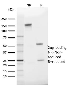 SDS-PAGE Analysis Purified GLUT-1 Mouse Monoclonal Antibody (GLUT1/2475).Confirmation of Purity and Integrity of Antibody.