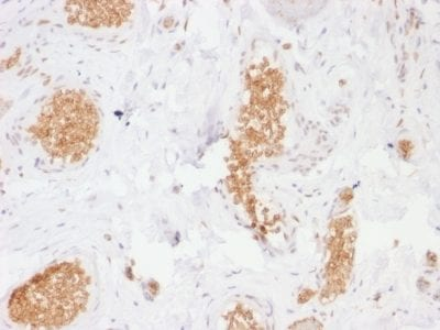 Formalin-fixed paraffin-embedded human Bladder stained with GLUT-1 Mouse Monoclonal Antibody (GLUT1/2476).